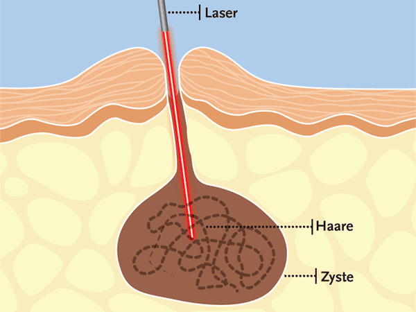 Fistula laser technology